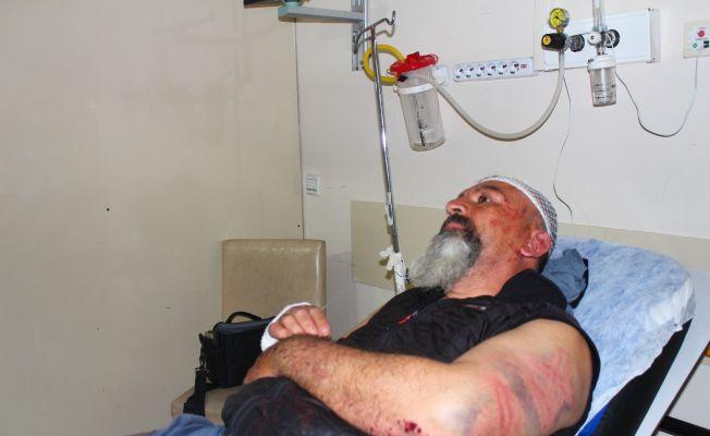 Esrarengiz kazanın ardından dakikalarca dövüldü