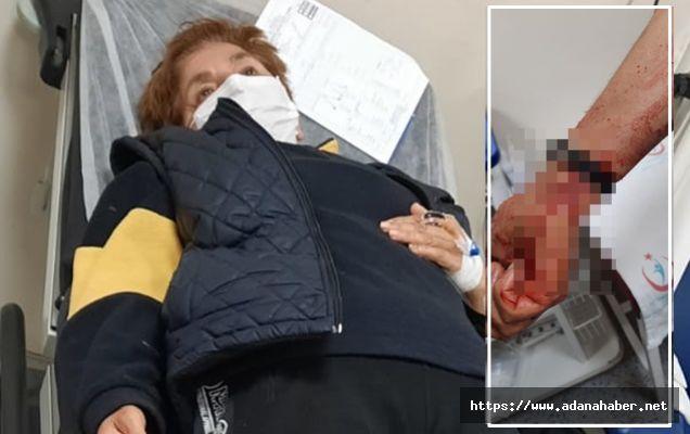 Gazeteci Fatma Tekbaş saldırıya uğradı