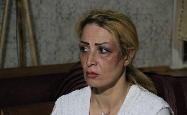 İranlı mimar kadın eşinden öldüresiye dayak yedi